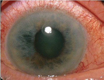 An Introduction to Eye Infections