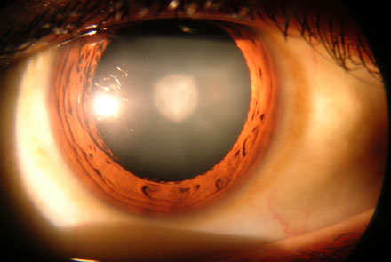 An Introduction to Cataract